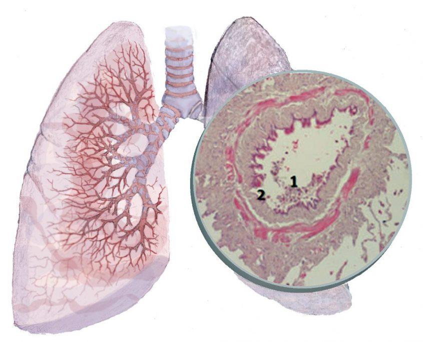 bronchiolitis obliterans therapie
