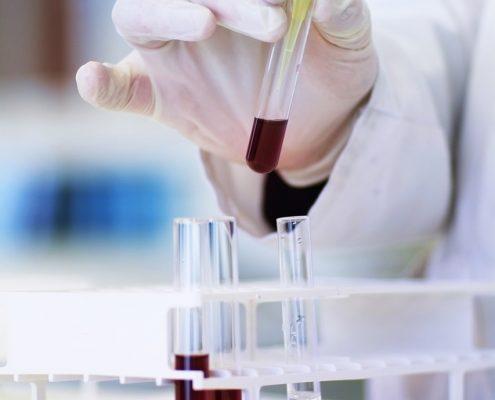 Laborarbeit ist sehr wichtig für die Forschung. Auch für die BO Forschung
